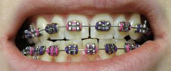 3 Ways to Help Your Child Become Confident in Braces